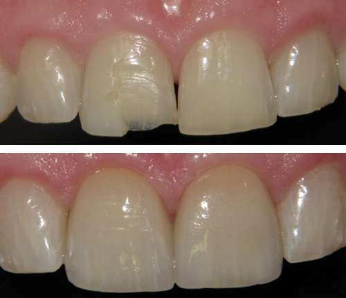 Porcelain Veneers on the 2 Central Incisors