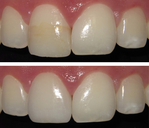 Single Crown on a Central Incisor