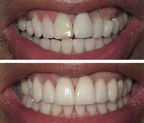 Gum Grafting & Porcelain Veneers