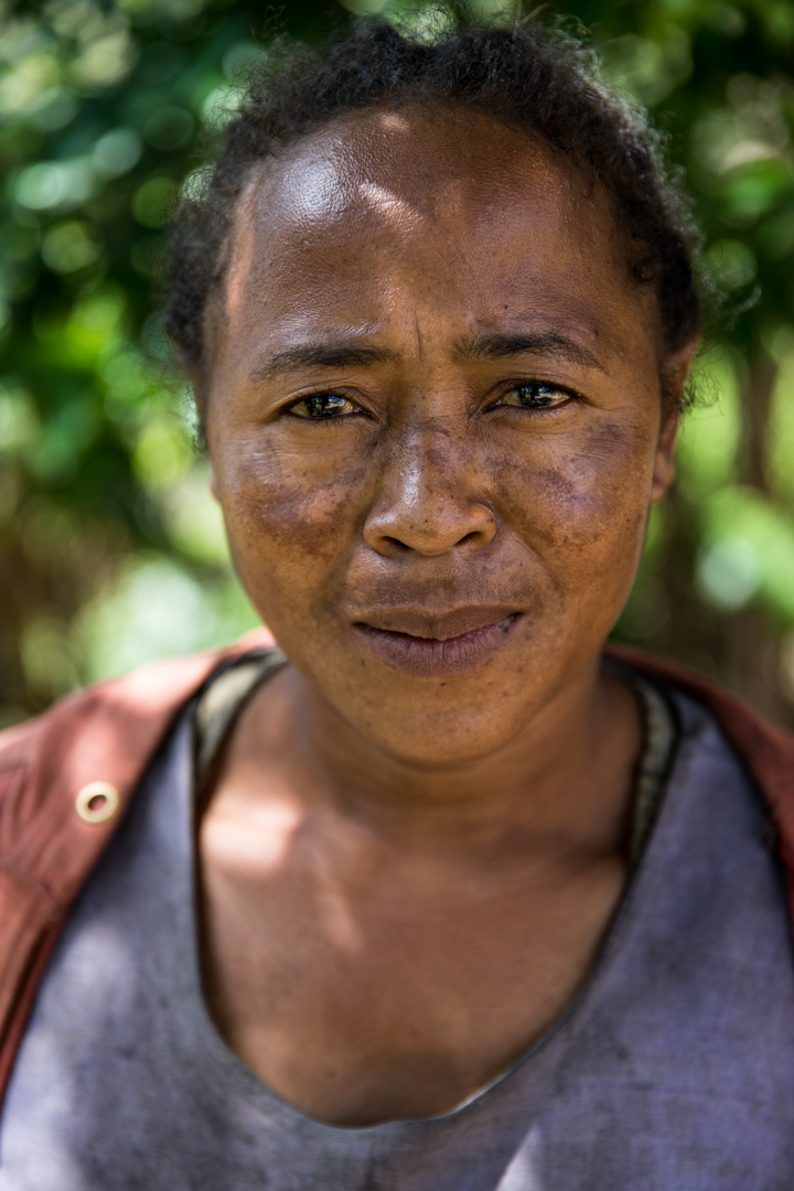 Rasoanantena is a 37 year old mother of 4. Her 4 kids were born in a hospital that lacks clean water. She collects water from a nearby pond with her daughter every day. Her dream for her children is to gain an education and live a healthy life. She knows clean water will help them succeed.