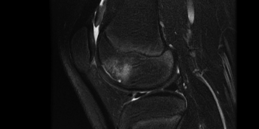 Adolescent Knee Disease