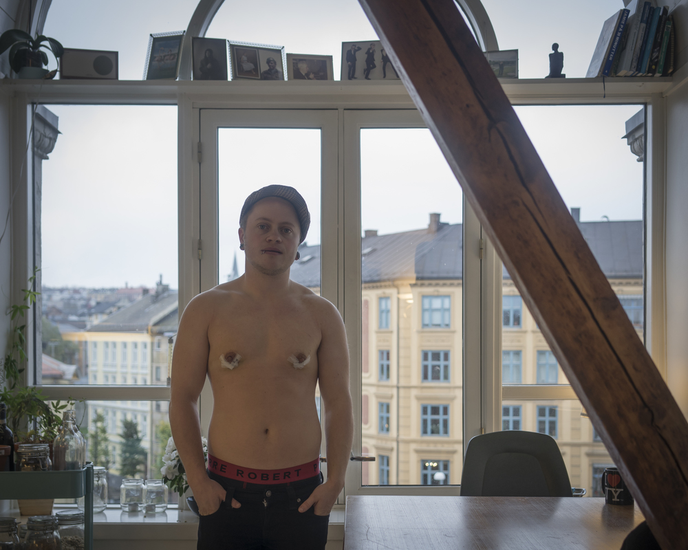 "Luca  is a trans man. He recently had chest surgery. ""It is nearly impossible to get treatment covered by national health care, it takes years and is a great psychological struggle. People who can afford it go abroad to private clinics instead."""