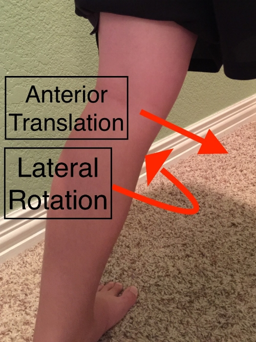 Anteromedial rotary instability of the left knee.