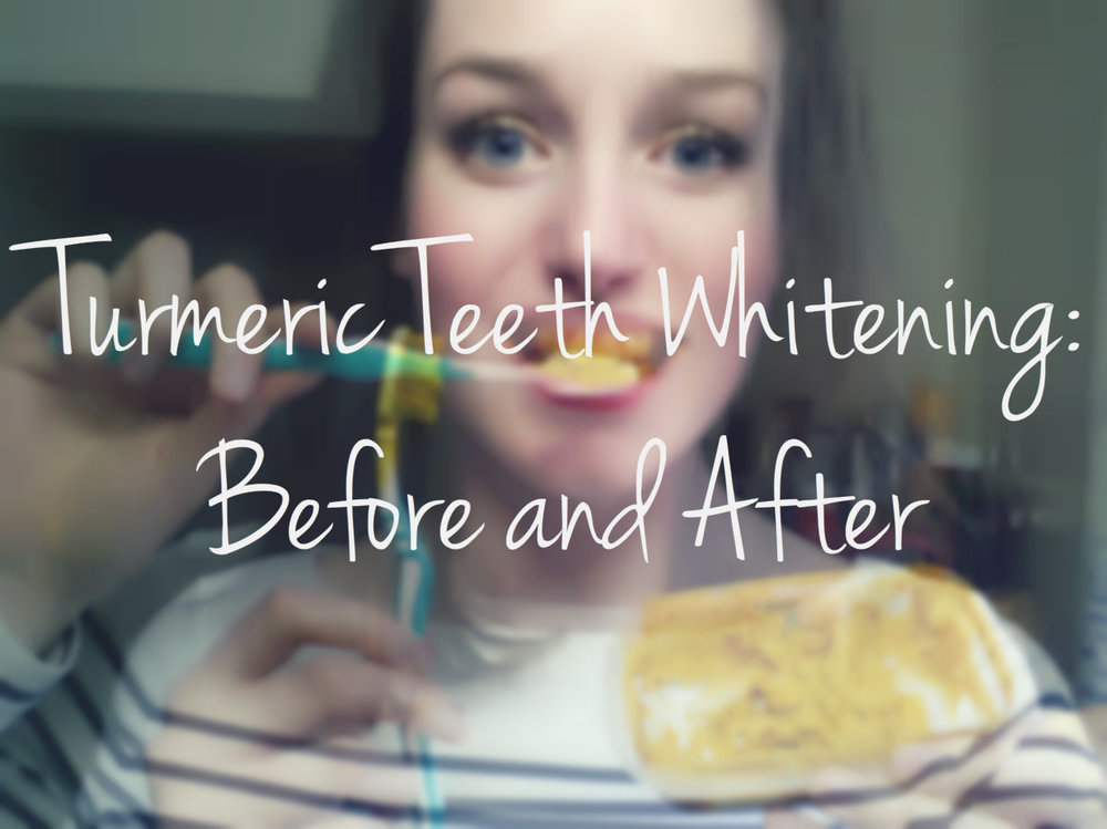Turmeric Teeth Whitening: Before and After