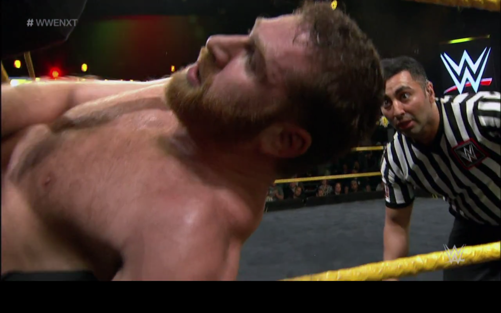 Sami kicked in the face through the turnbuckle.