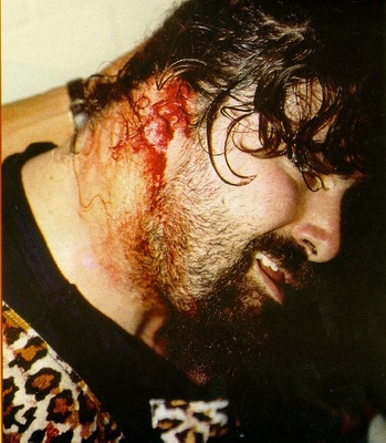 Mick Foley, having just lost his ear in Munich Germany on March 17th, 1994.
