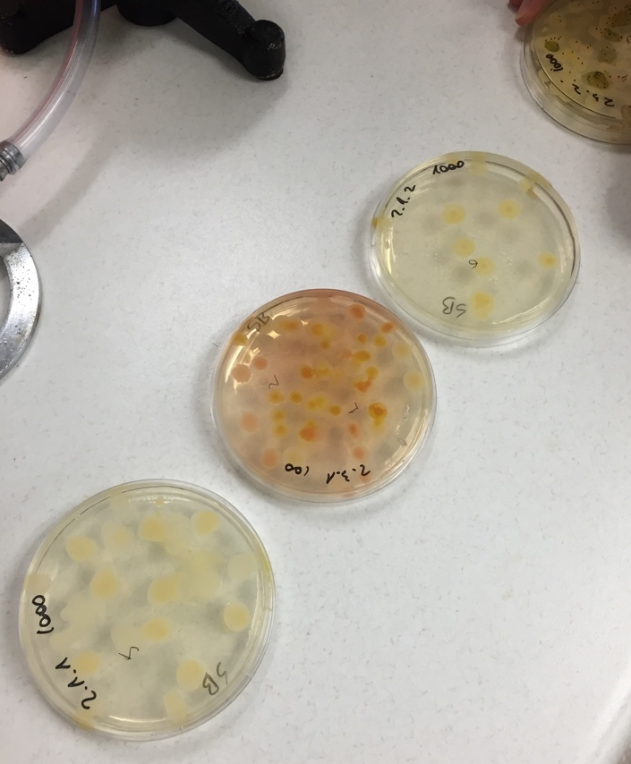 Plastic Petri dishes containing the Sabouraud agar (solid medium) used to grow fungi colonies