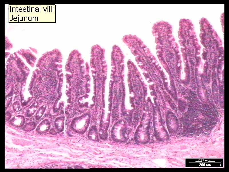 17-intestinal-villi-jejunum-a