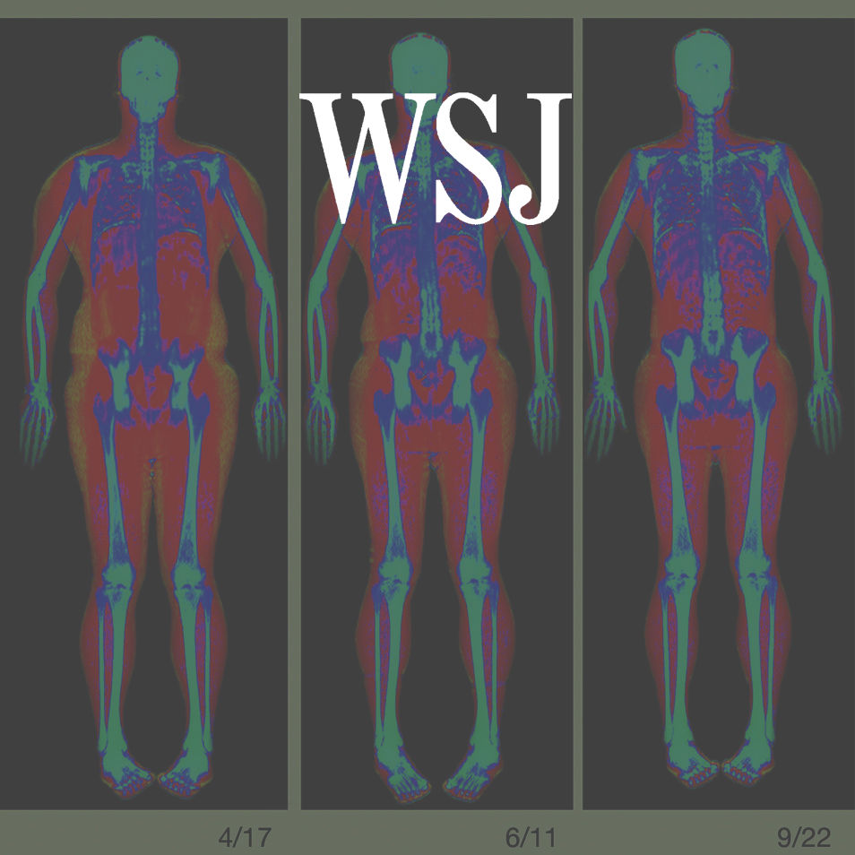 Too Much Fat? Try a Whole-Body Scan -