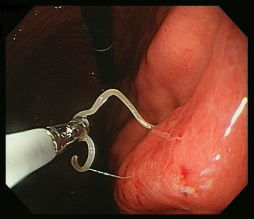 Anisakis being removed from the gut of a patient. Photo credit: Dr. Toshio Arai, MD PhD.