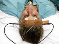 woman-electroconvulsive-therapy-200.jpg