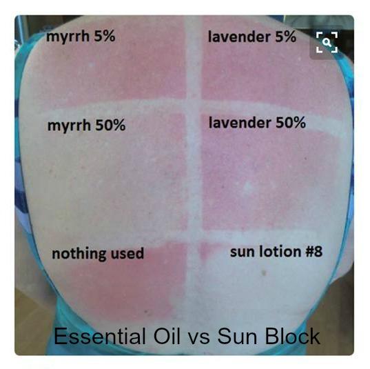 sun-block-essential-oils-sun-damage.com