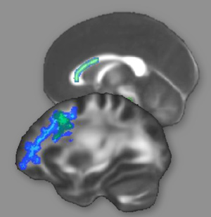 The brain's white matter, shown above, contains the connections between neurons. The white matter regions highlighted in green or blue showed changes after intense preparation for the LSAT, suggesting improved interconnections among reasoning areas of the brain. (Bunge lab image.)