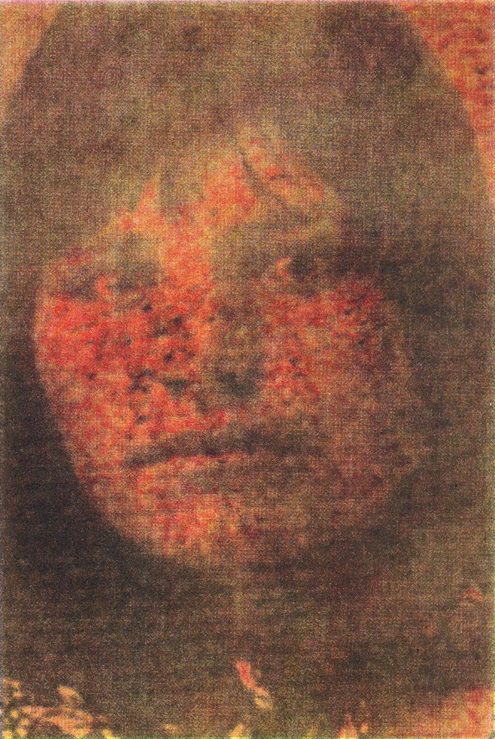 Eschar.jpg