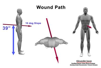 Wound-Path.jpg