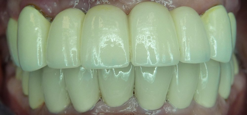 Upper Implant Supported Porcelain Bridge  Lower SIngle Porcelain Crowns