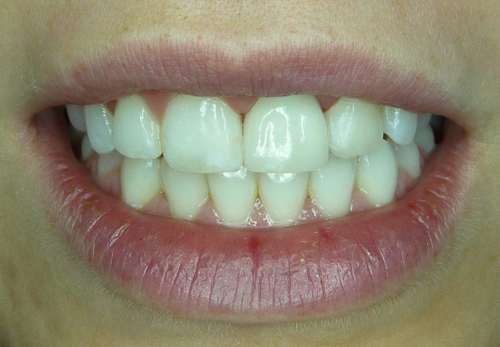 mentor dentist veneer.JPG