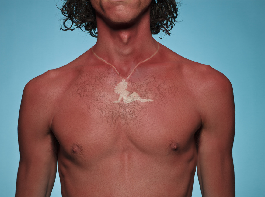 010GettySunburn.jpg