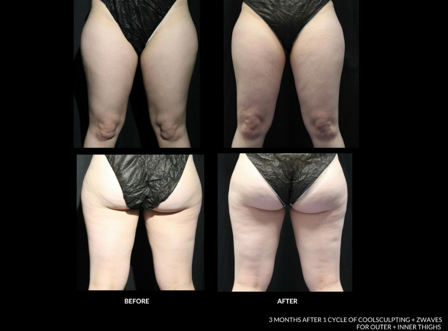 Before and After _ Outer Thighs_CoolSculpting.jpg