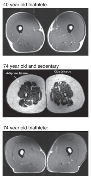 triathlete-quad-scans.jpg