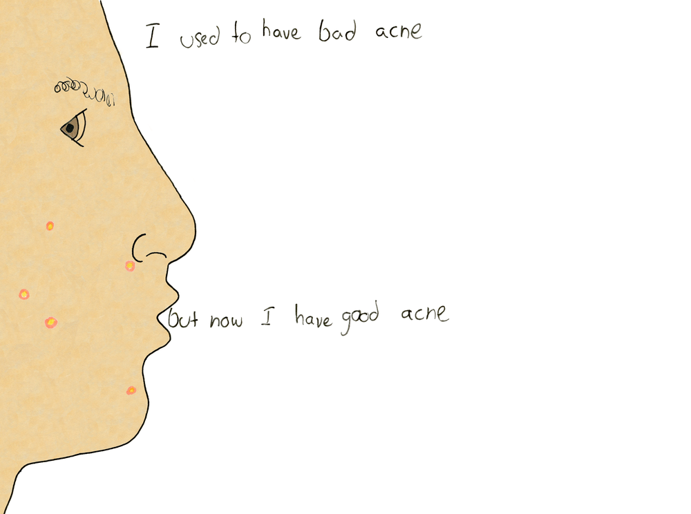 i used to have bad acne.png