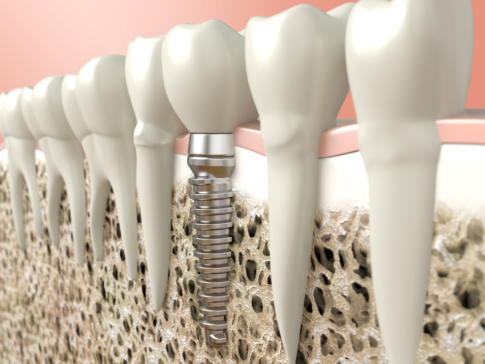 Single Implants to Replace Individual Teeth