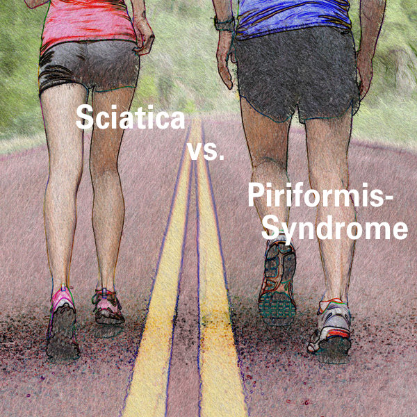 Is Piriformis Syndrome different than Sciatica?