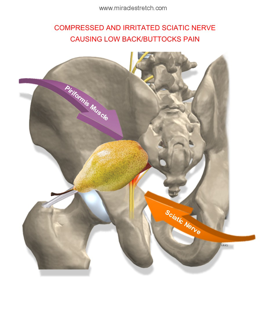 Piriformis-Muscle-Compressed-Sciatic-Nerve-Pear.png
