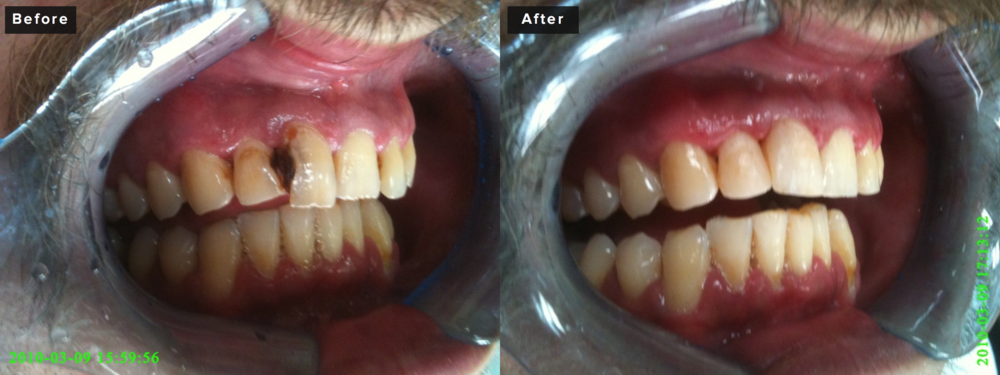 This is an example of routine decay removal and filling with composite bonding material. One visit of about 30-40 minutes involving restoration of two teeth. No down time at all. Huge improvement both physically with the actual teeth, but also some great emotional gain for this patient with relative ease.
