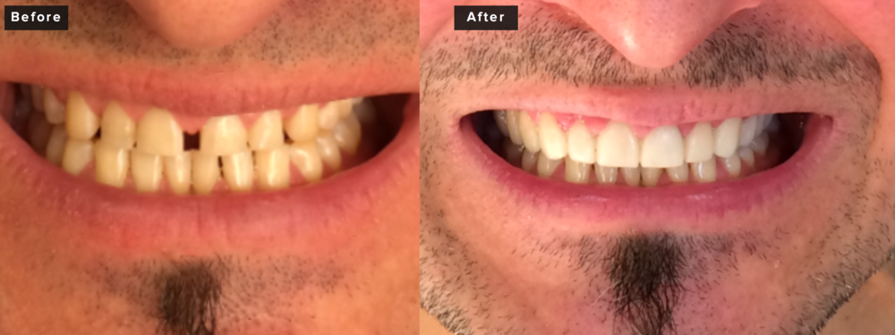 This patient wished to improve his smile from an aesthetic standpoint while also restoring lost vertical dimension due to years of grinding and general wear. He decided to close the space - what is called a midline diastema. The second shot is not of the final result, but only of his temporary restorations. It's actually great to be able to show people that even the temporaries can look great and can act as a test run for the final result. We didn't actually get his final result photos taken as yet, but I think these shots are actually quite informative for people. This patient had twelve upper teeth prepared for all porcelain crowns in addition to laser recontouring of his gum tissues to achieve proper symmetry. It involved a four hour visit to prep the teeth and the final restorations took about three hours to insert - three weeks between visits but not a problem with good looking temporaries. Final photos to follow!