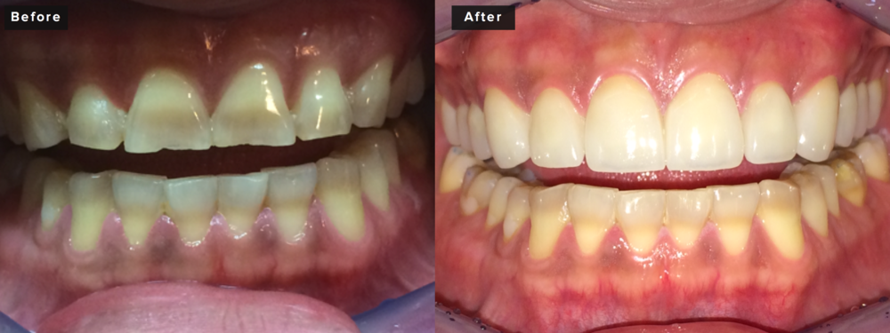 This patient also had twelve upper crowns prepared in order to address severe tetracycline staining, heavy wear, and poor gum contours. We were able to completely mask all staining, rebuild his bite and provide added vertical dimension to replace his worn enamel, and also properly contour his gingival tissues with a diode laser to provide more symmetrical shaping that is more masculine in nature than the initial tapered presentation. This procedure took about four hours of preparation time and about an hour and a half of insertion time. Two visits not including the work-up and consultation visits. Two to three weeks between preparation and insertion.