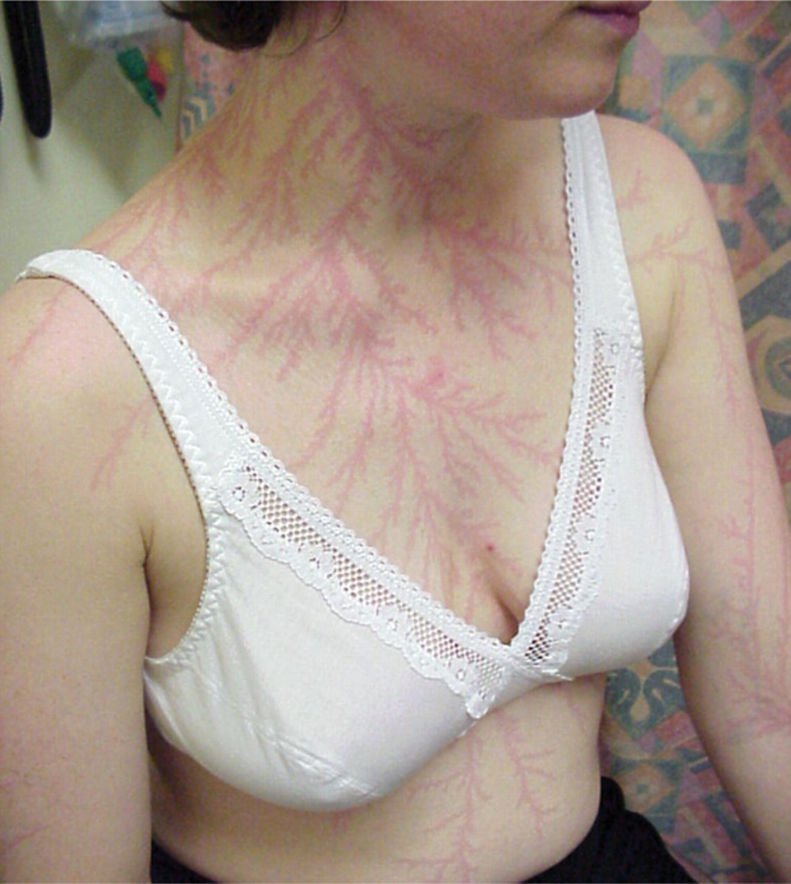 Lichtenberg figures may also appear on the skin of lightning strike victims. These are reddish, fernlike patterns that may persist for hours or days. They are also a useful indicator for medical examiners when determining the cause of death. Lichtenberg figures appearing on people are sometimes called  lightning flowers , and they are thought to be caused by the rupture of small capillaries under the skin due to the passage of the lightning current or the shock wave from the lightning discharge as it flashes over the skin. A lightning strike can also create a large Lichtenberg Figure in grass surrounding the point struck. These are sometimes found on golf courses or in grassy meadows.