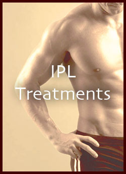 IPLTreatment1.jpeg