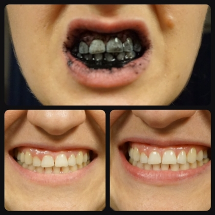 Charcoal Brushing                                                                  Before & After