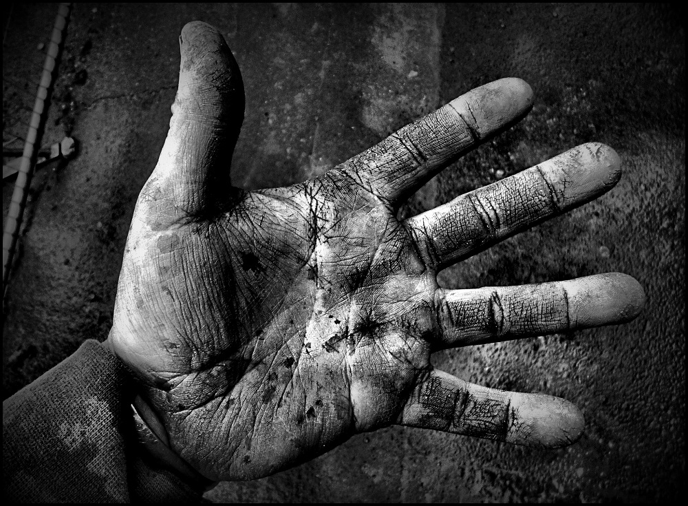 ( Dirty Hands  | Craig Sunter)