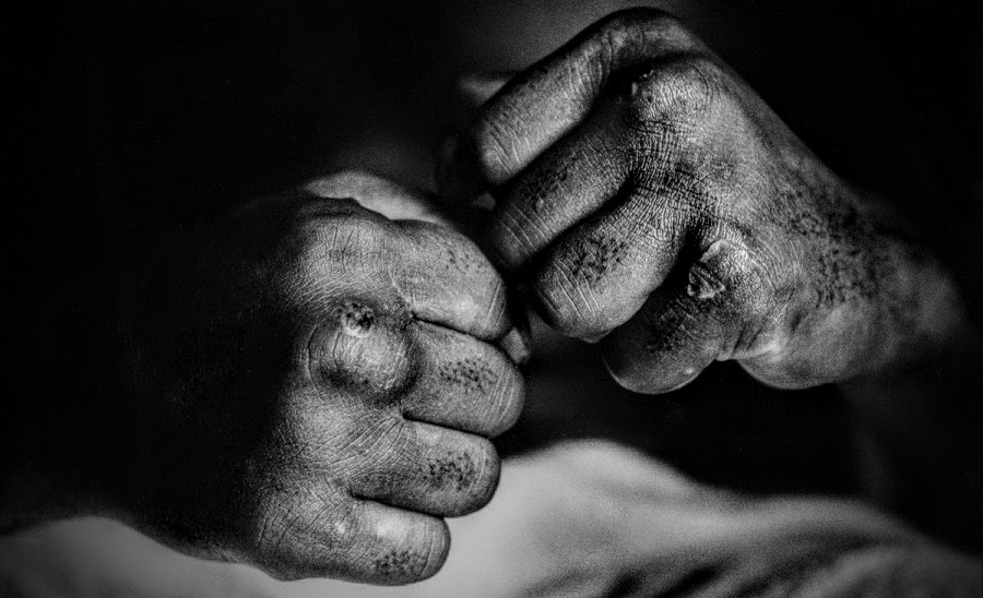 The weathered hands of Muhammad Ali