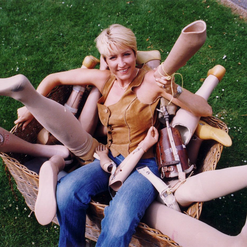 Heather, surrounded by prosthetic limbs