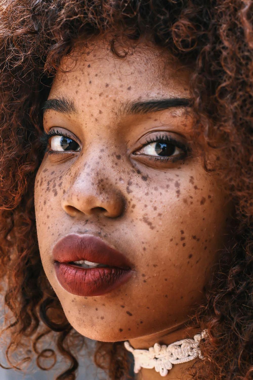 Model: Zol Freckles.