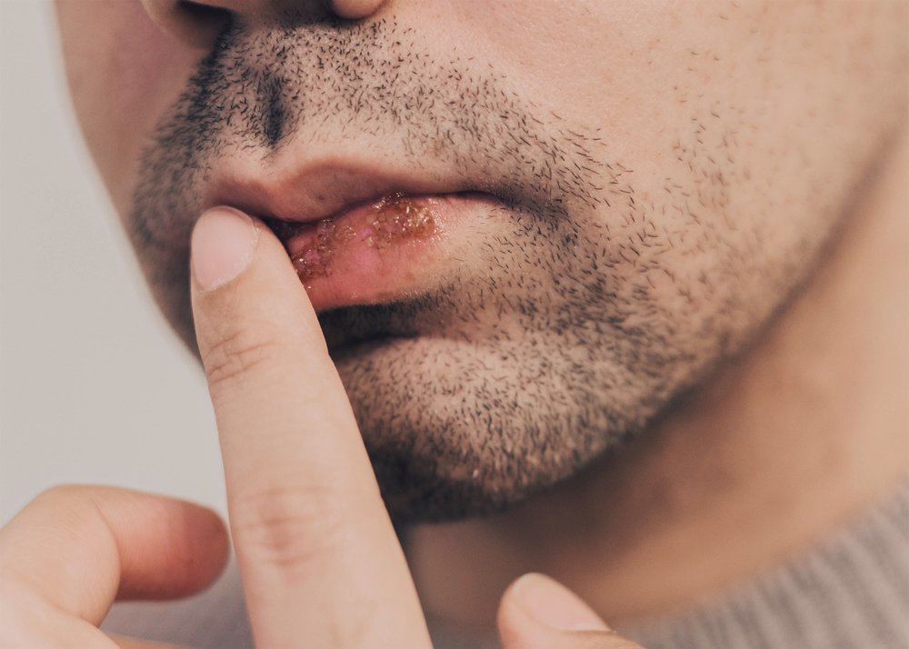 why-men-should-pay-attention-to-their-lips.jpg