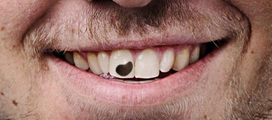 Um sorriso faz toda a diferença – mas lembre sempre de escovar os dentes pós almoço.