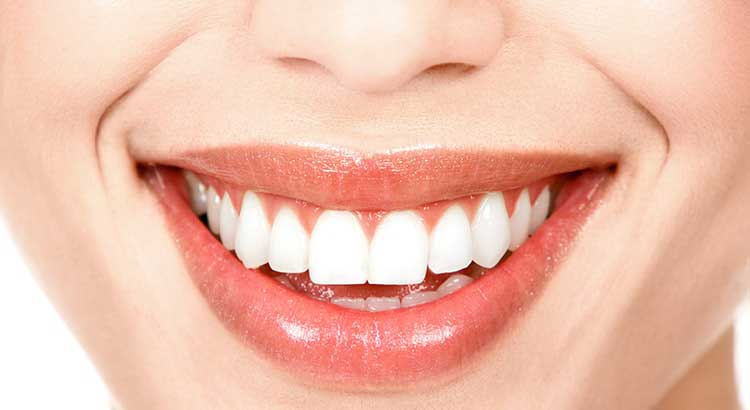 Close up of a bright white smile to show that porcelain veneers in Portland Oregon can give you a gorgeous smile.