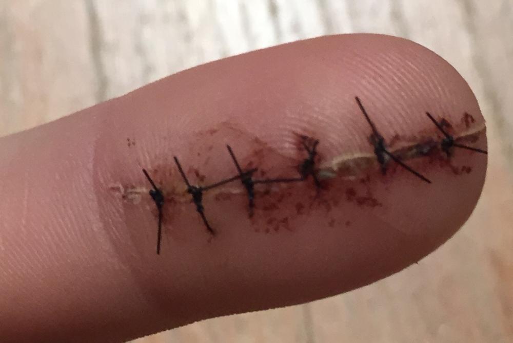 Stitches galore