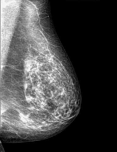 Breast mammographymky.jpg