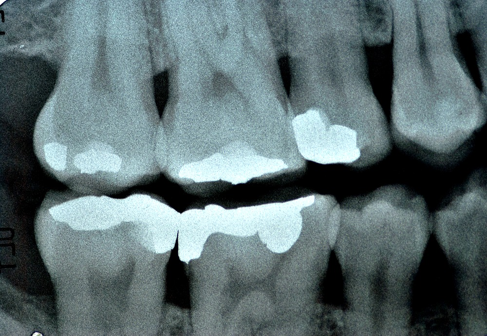 dental bite wingmky.jpg