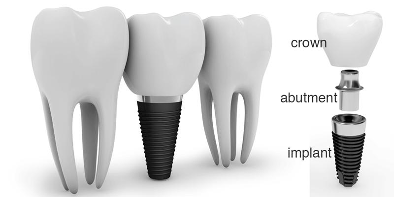 dental_implant.png