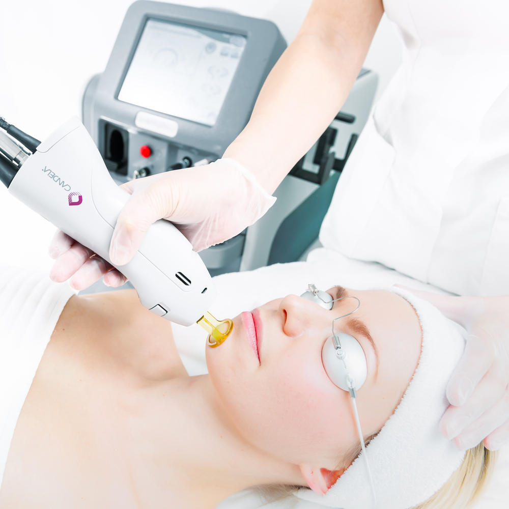 Laser Hair treatments being performed