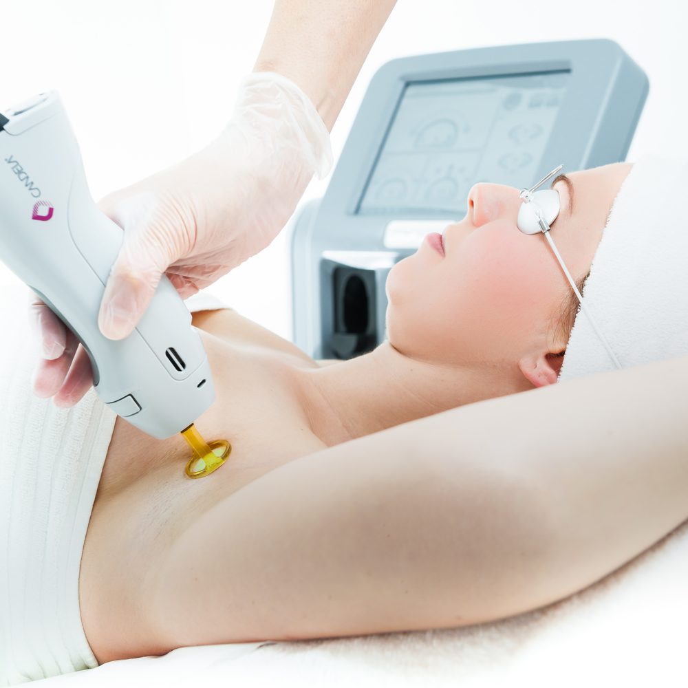 Laser Hair removal  galway