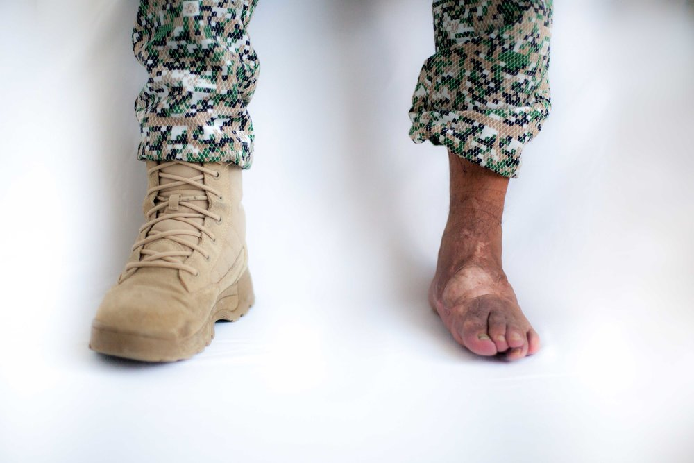 Edgar Ariza, Marine Corps Soldier. Edgar suffered amputation of metatarsals of his left foot and 80% hearing loss, after combats in Meta region on October 2000. (Coveñas, Sucre, 2016).