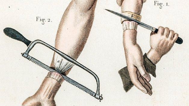 Illustration of hand amputation. Civil War Era. 19th Century.