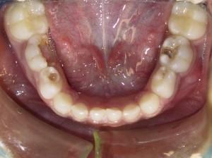 What Causes Cavities Dunes Dental 4 Kids